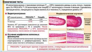 PROCAPIL Прокапил - procapil ris2 - 3